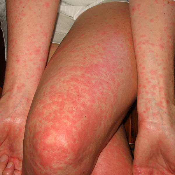 scarlet fever cases increase 237% in lincolnshire, Human Body