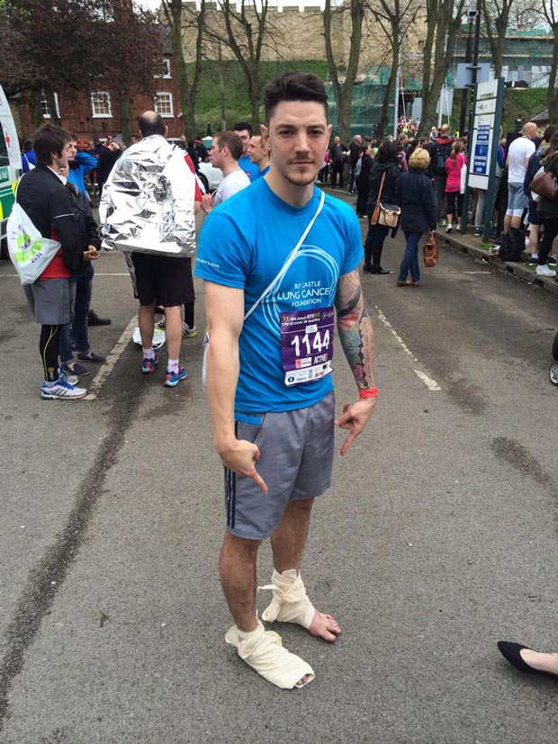 Chris with bandaged feet after the Lincoln 10k.